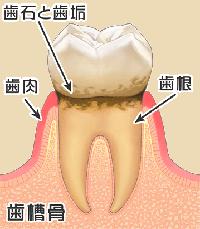 歯垢と歯石