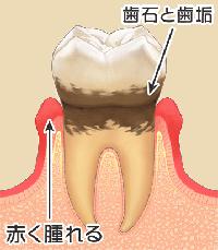 歯周病と歯石